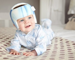 A baby wearing a TiMband (a form of plagiocephaly helmet).